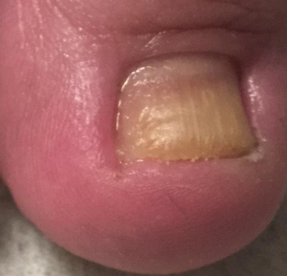 Röd tå med nageltrång